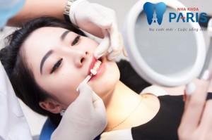 hình ảnh đắp răng sứ giả bằng công nghệ hiện đại tại nha khoa paris