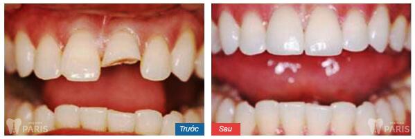 Bị gãy 4 răng cửa phải làm sao -Bọc răng sứ cho răng cửa khi vẫn còn chân răng