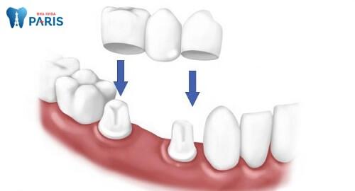 Làm cầu răng sứ cũng là một phương pháp phục hình răng gãy tốt