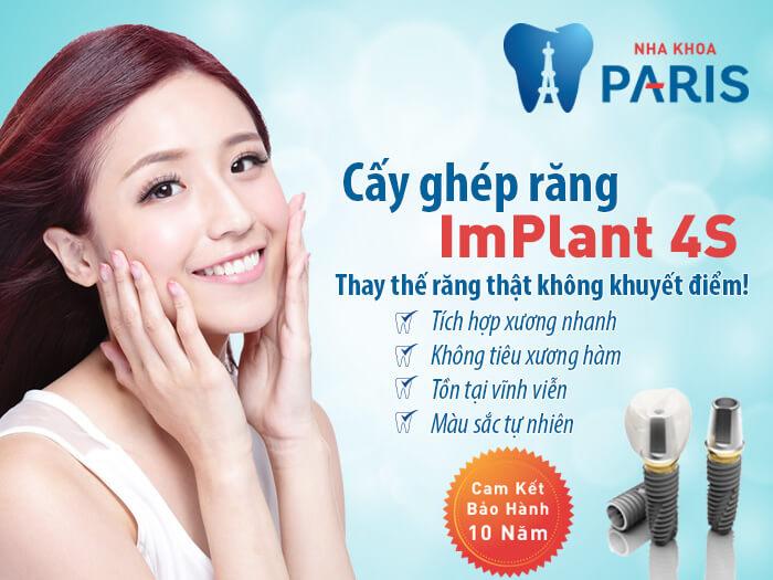 Bị gãy 4 răng cửa phải làm sao -Công nghệ cấy ghép răng Implant 4S