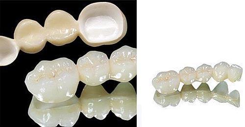 Răng sứ Zirconia – Giải pháp phục hình răng thẩm mỹ mới nhất 1