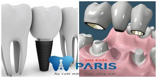 Trồng răng giả có đau không? Sự thật không phải ai cũng biết 2