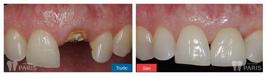 hình ảnh khách hàng trồng răng sứ titan tại nha khoa Paris