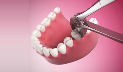 Nhổ răng có đau không và có nguy hiểm không? 1