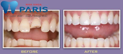 Những sai lầm gãy răng cửa thường gắp và cách khắc phục hiệu quả 1