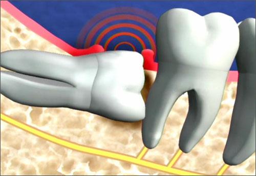 Có nên nhổ răng số 8 không? – Chuyên gia tư vấn 1