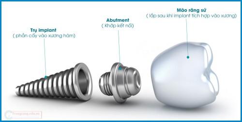 Giá trồng răng implant tại Nha khoa Paris là bao nhiêu? 1
