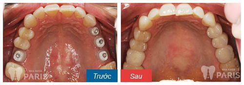 Trồng răng giả implant mất bao lâu thì hoàn tất? [BS Tư Vấn] 1