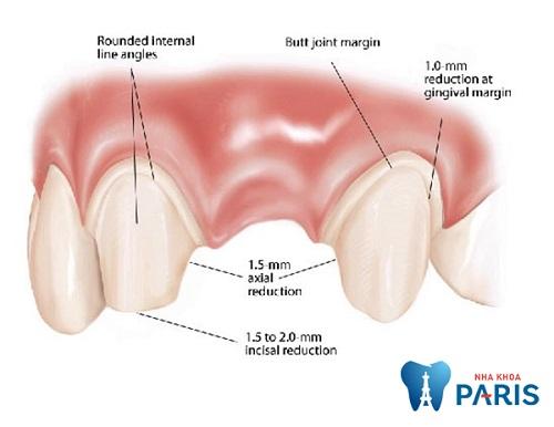 Việc mài cùi tạo trụ làm nảy sinh lo lắng làm răng sứ có đau không