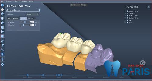 Công nghệ làm răng sứ chuẩn xác tới từng vi điểm