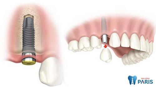 Quy trình trồng răng Implant đảm bảo tiêu chuẩn Quốc tế 3
