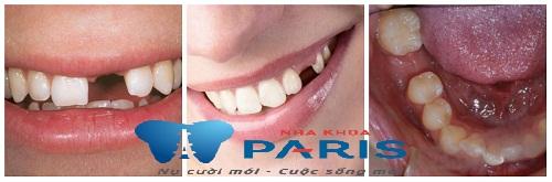 Mất hết răng hàm ở hai bên hàm dưới phải làm sao để khôi phục? 1