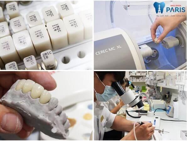 Có nên làm răng sứ không kim loại cho răng cửa vỡ không? 3