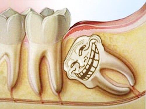 Làm sao để hết đau răng Nhanh và Hiệu Quả【Chia sẻ từ chuyên gia】 2