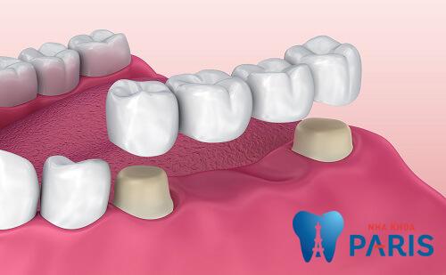 trồng răng giả cho người cao tuổi