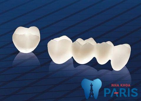 Bật mí: Trồng răng cấm nên dùng loại răng sứ nào? 2