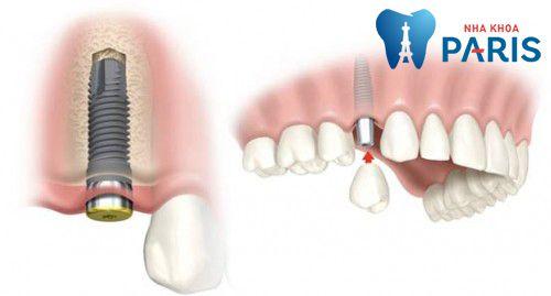 Những lưu ý khi cấy ghép Implant cần thiết nhất 1