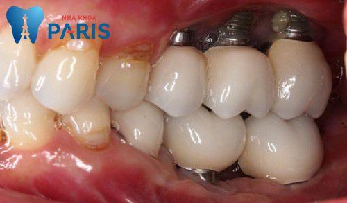 Những lưu ý khi cấy ghép Implant cần thiết nhất 2