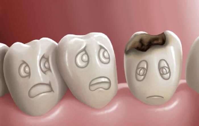Giải đáp thắc mắc: Nhổ răng sâu có ảnh hưởng gì không?  1