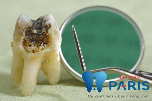 Nhổ răng cấm và những điều bạn tuyệt đối cần phải nhớ 1