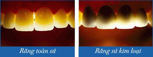 Có nên làm răng sứ không kim loại cho răng cửa vỡ không? 2
