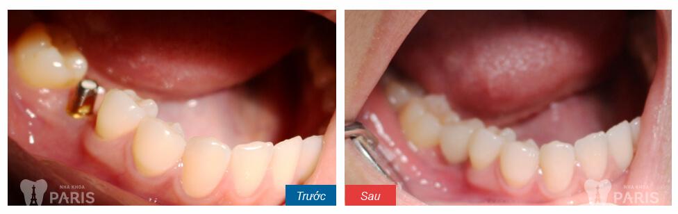 Bật mí: Trồng răng cấm nên dùng loại răng sứ nào? 3
