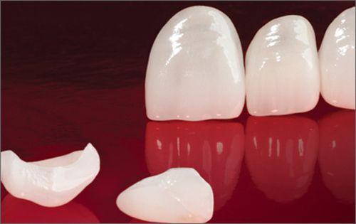Có nên làm răng sứ không kim loại cho răng cửa vỡ không? 1