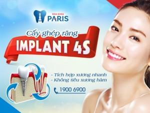 Công nghệ Implatn 4S làm cầu răng không cần mài răng thật