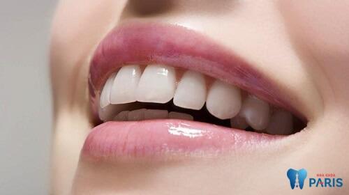 Lưu ý khi bọc răng sứ thẩm mỹđể có được một hàm răng đẹp