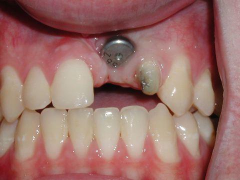 Trồng răng cửa giá bao nhiêu tiền khi dùng bằng cấy ghép Implant? 3