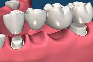 Kéo dài tuổi thọ của Cầu Răng bằng cách nào TỐT NHẤT 1