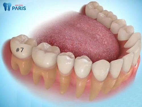 Răng số 7 bị hỏng có nên nhổ không tùy vào tình trạng răng miệng