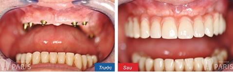 Trồng răng mất 1 hàm