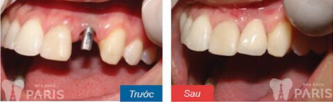 Trồng răng giả bao nhiêu tiền ở Đà Nẵng 1