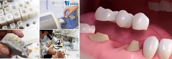 Làm cầu răng sứ công nghệ Nano Shining 5S - Răng đẹp hoàn hảo 2