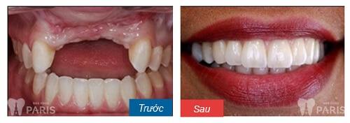 Làm cầu răng sứ công nghệ Nano Shining 5S - Răng đẹp hoàn hảo 5