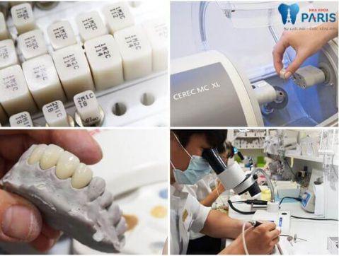 Nên trồng răng giả loại nào tốt và bền chắc nhất hiện nay? 4