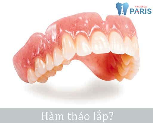 Trồng răng giả như thế nào để đảm bảo chất lượng Nhất 2018? 1