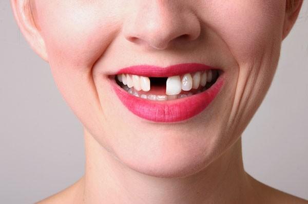 Gãy răng cửa có ảnh hưởng gì không 1