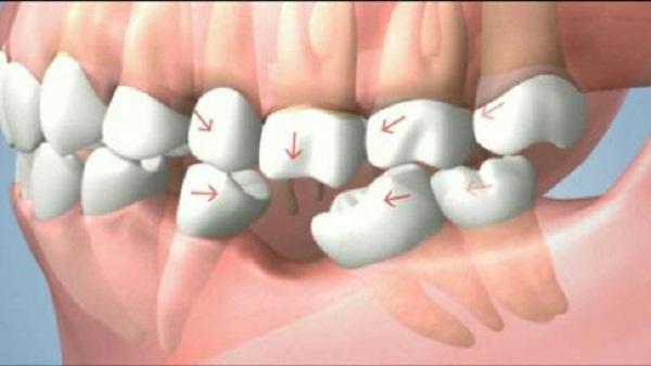 Mất răng cấm - Cách khắc phục bằng công nghệ trồng răng nào tốt? 1