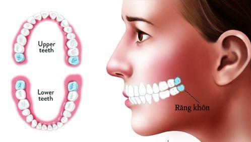 Mất răng khôn 1