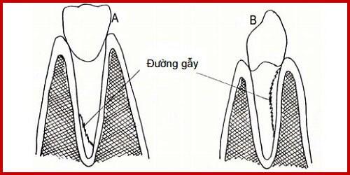 Top 4 điều cần lưu ý khi bị Gãy Chân Răng – BS Tư Vấn