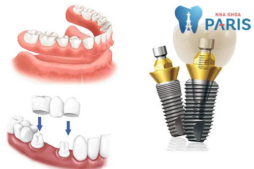 Bị gãy răng hàm - Nguyên nhân, ảnh hưởng & cách khắc phục tối ưu 2