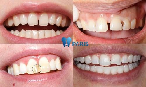 Khắc phục mẻ răng cửa bằng phương pháp trám răng