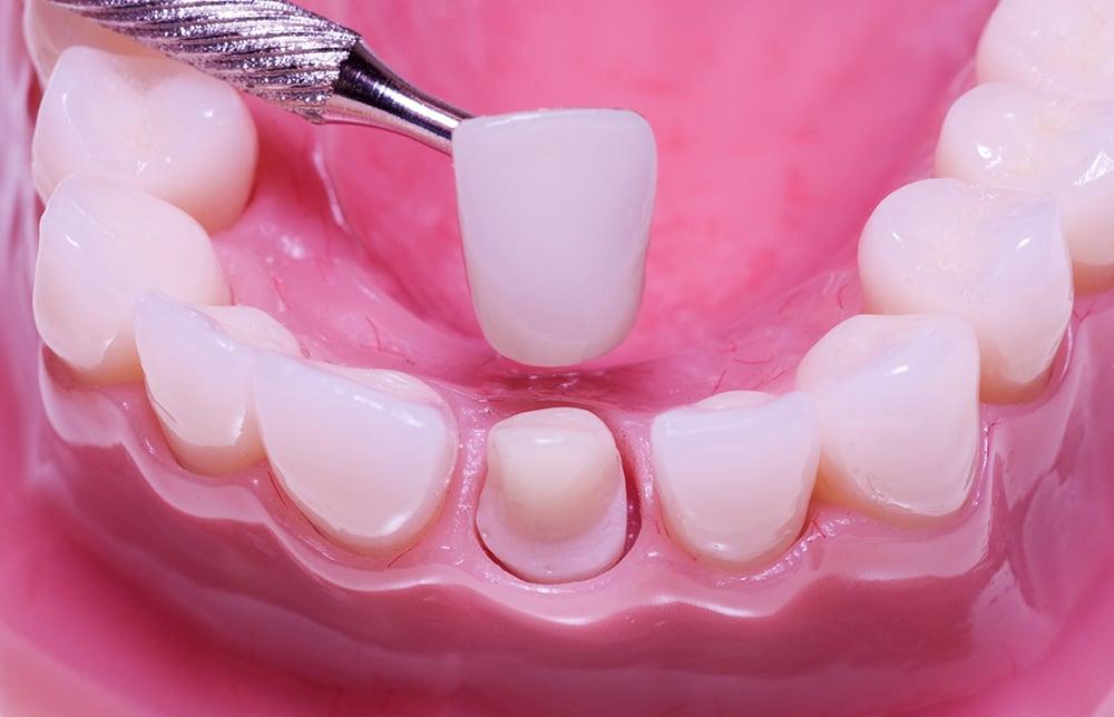 Bọc răng sứ khôi phục răng bị tổn thương tới ngà răng