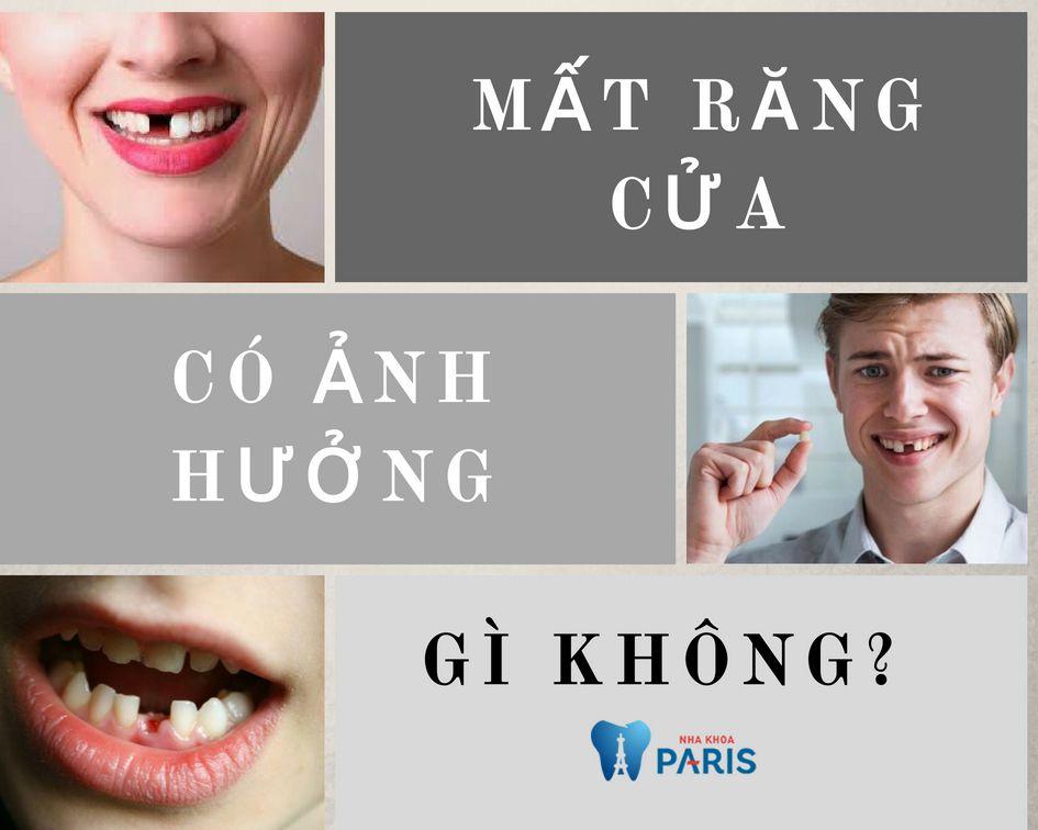 Gãy răng cửa có ảnh hưởng gì không?