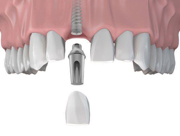 Trồng răng implant giúp khôi phục răng mất hiệu quả nhất