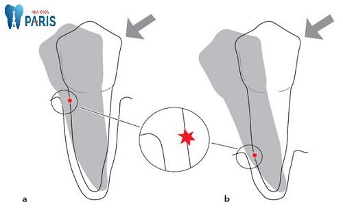 Cách làm chắc răng lung lay hiệu quả từ chuyên gia 1