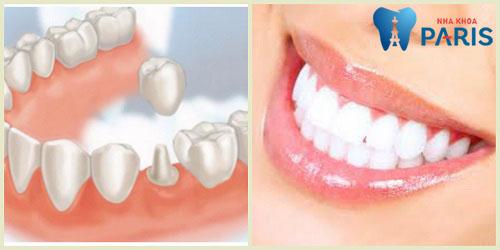 Bị gãy răng cấm ảnh hưởng thế nào? Khắc phục ra sao?