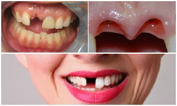 Giải pháp khắc phục hiệu quả khi bị mất răng cửa là gì? 1